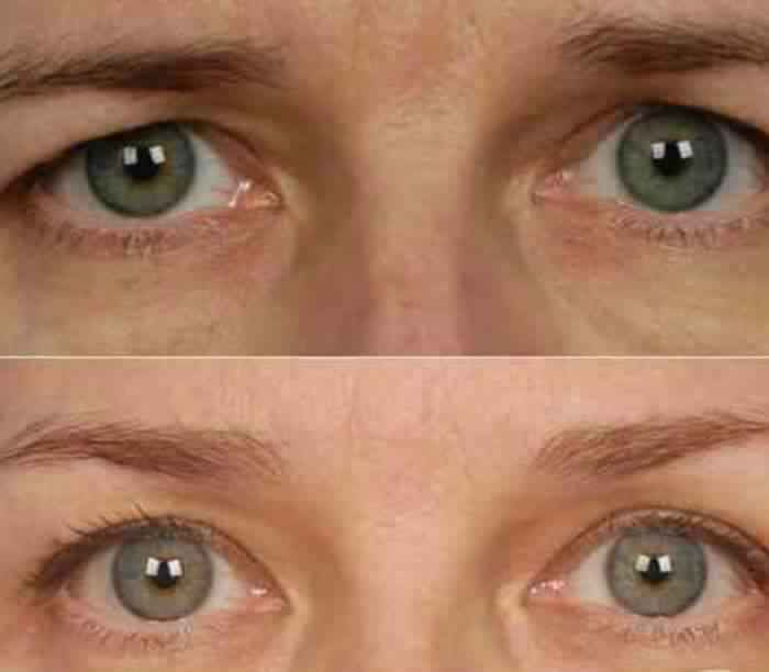 Botox for Brow Lift