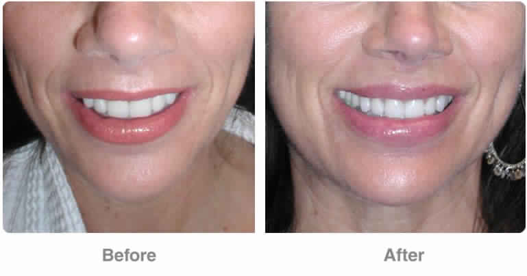 Botox for Gummy Smile