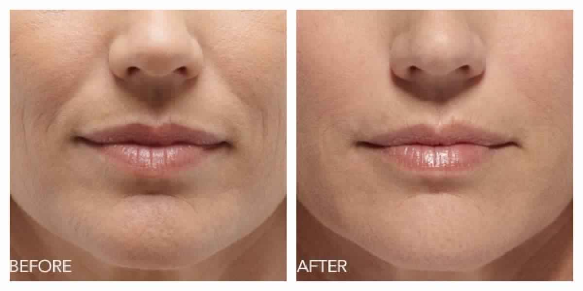 Botox for Lip Lines or Wrinkles